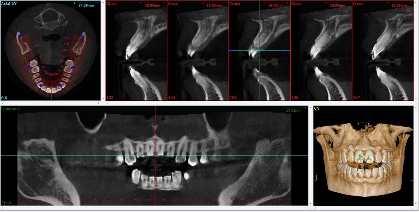 cbct_image_03.png