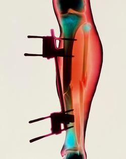 coloured-x-ray-of-a-fractured-tibia-fibula-.jpg