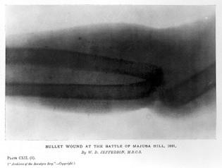 bullet_wound._archives_of_the_roentgen_ray_wellcome_l0013668.jpg