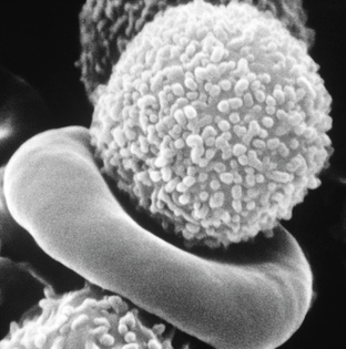 sem-of-white-blood-cell-from-patient-professor-aaron-polliackscience-photo-library.jpg