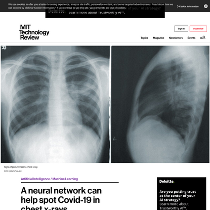 A neural network can help spot Covid-19 in chest x-rays - MIT Technology Review
