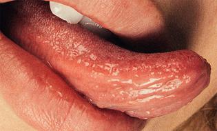 chadwick_tyler_mouth_mini_title_830.jpeg