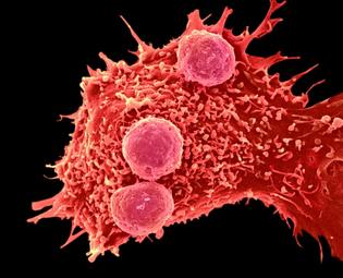 WEB_C0288799-Cancer_cell_and_T_lymphocytes-_SEM-SPL.jpg