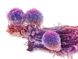 C0288779-Cancer_cell_and_T_lymphocytes-_SEM-SPL_WEB.jpg