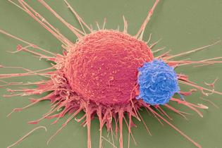 web_C0226482-T_lymphocyte_and_cancer_cell-_SEM-SPL.jpg