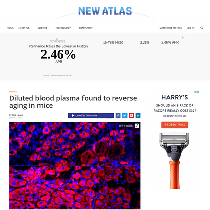 Diluted blood plasma found to reverse aging in mice