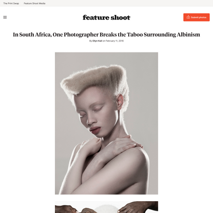 In South Africa, One Photographer Breaks the Taboo Surrounding Albinism - Feature Shoot