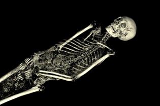 Skeleton-scanning.jpg