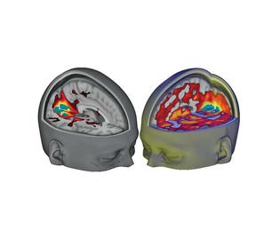 Acid Brain