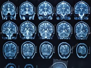 depositphotos_18723407-stock-photo-mri-brain-scan.jpg