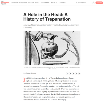 A Hole in the Head: A History of Trepanation | The MIT Press Reader