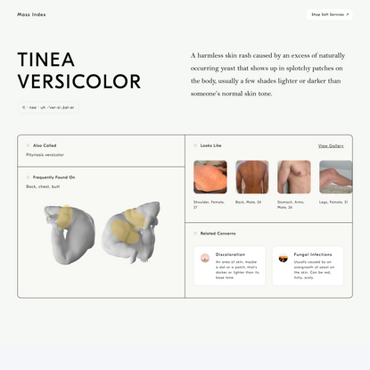 What is Tinea Versicolor? | What Causes Tinea Versicolor? | Soft Services | Treatments for the Skin on Your Body