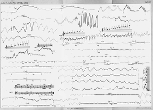 Johann Dogiel, Blood-pressure rhythms in dogs, cats and humans in response to the sounds of musical instruments, Leipzig Institute for Physiology, Saxony, 1880