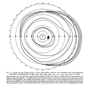 """The classical image on the shape and size of the visual field by Harry Moss Traquair in his book 1938 """"Clinical Perimetry"""", Chpt. 1, p 4. Modified to show the essentials. It shows that the visual field is considerably larger on the temporal side than the often quoted 90° extent."""