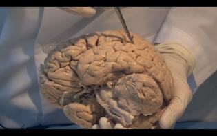 Brain with Probe